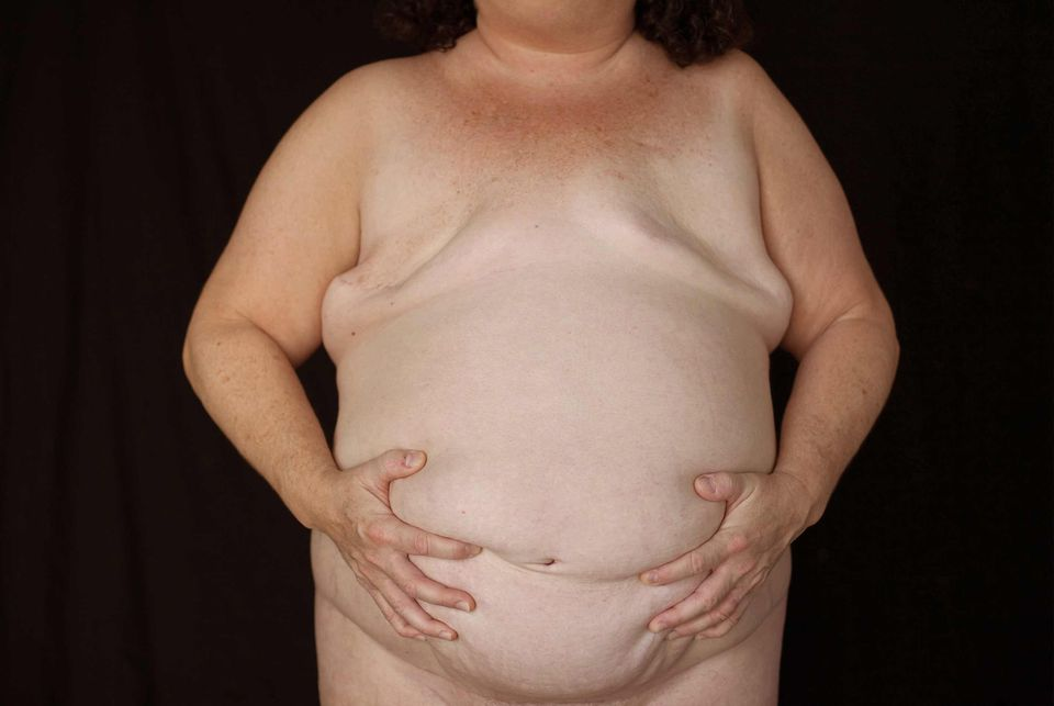 An unnamed breast cancer survivor from Amy Gelb's photo series As Is (2012-ongoing)